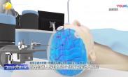 """西北首例机器人辅助脑深部肿瘤切除术成功实施 机器人""""导航定位"""""""
